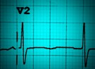 ECG number 5: chest pain…again!
