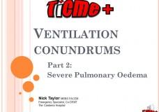 TiCME+ Difficult Ventilation Part 2: Severe Pulmonary Oedema