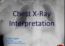 TiCME CXR Interpretation