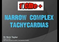 TiCME+ Narrow Complex Tachycardias