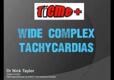 Wide Complex Tachycardias