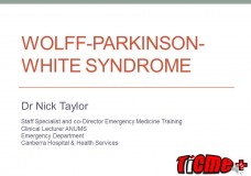 Wolff Parkinson White Syndrome